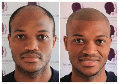 scalp-innovations-hair-loss-7-400x282 Gallery -The Scalp  & Micro-pigmentation Experts Swindon