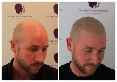scalp-innovations-hair-loss-3-400x282 Gallery -The Scalp  & Micro-pigmentation Experts Swindon