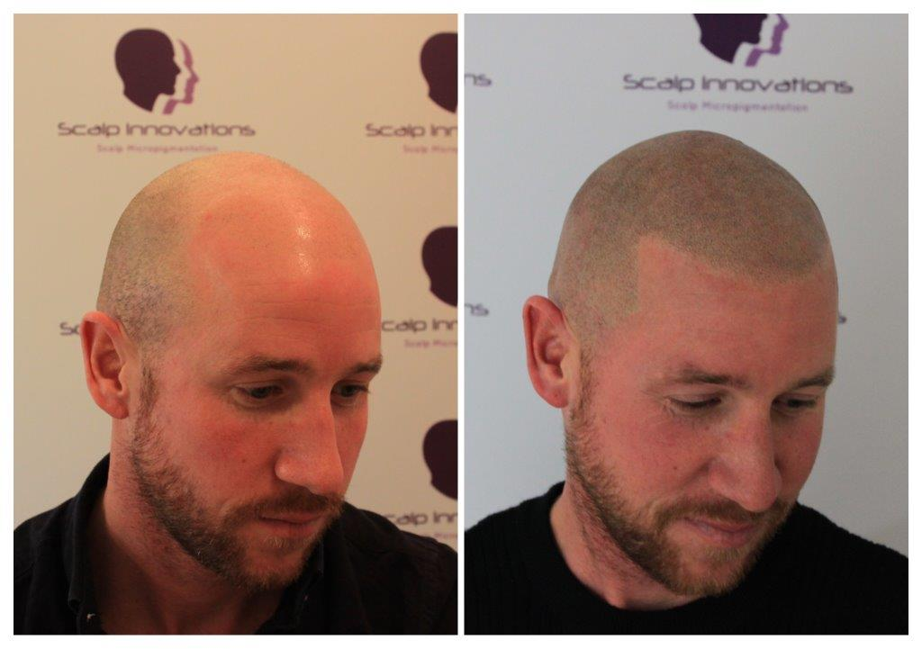 scalp-innovations-hair-loss-3 Gallery -The Scalp  & Micro-pigmentation Experts Swindon