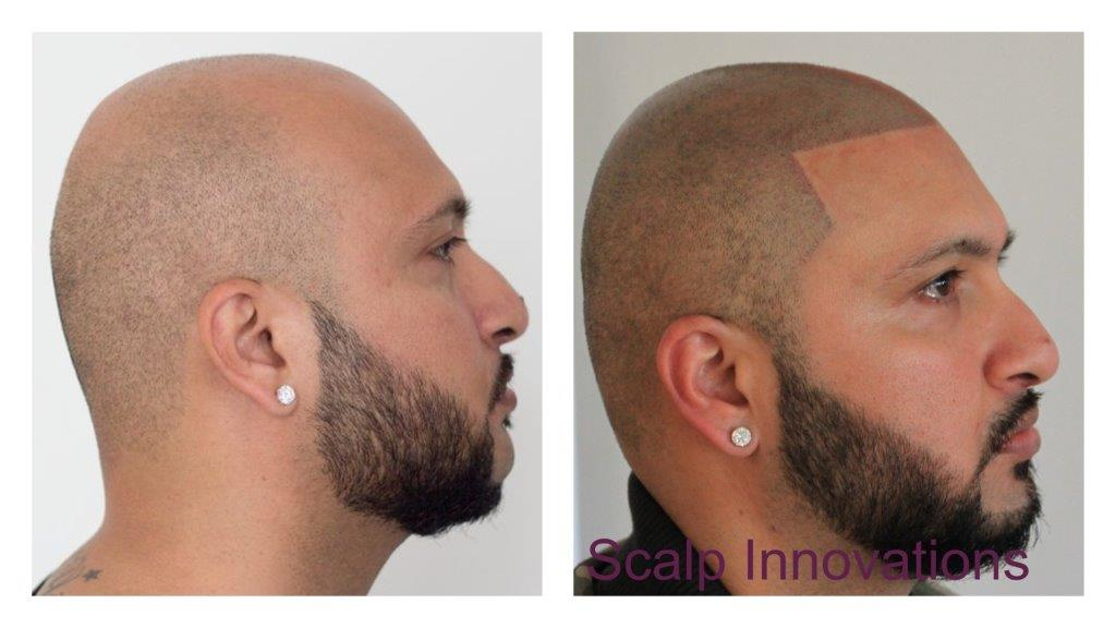 scalp-innovations-hair-loss-4 Gallery -The Scalp  & Micro-pigmentation Experts Swindon