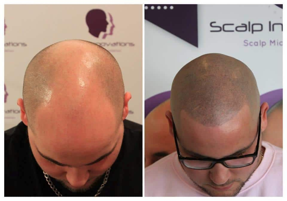 scalp-innovations-hair-loss-5 Gallery -The Scalp  & Micro-pigmentation Experts Swindon