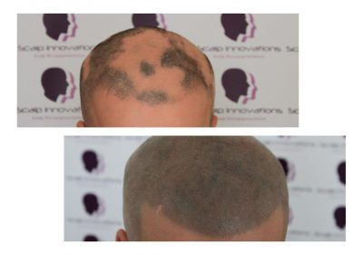 ASUS-Alopecia-Areata-Micropigmentation-400x281 Gallery -The Scalp  & Micro-pigmentation Experts Swindon