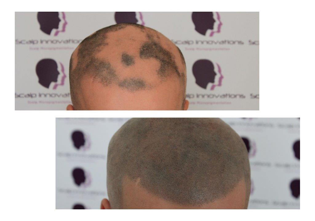 ASUS-Alopecia-Areata-Micropigmentation Gallery -The Scalp  & Micro-pigmentation Experts Swindon