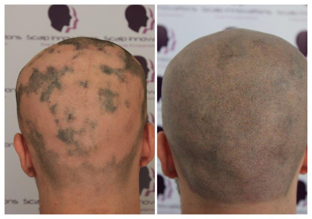 ASUS-Alopecia-Areata Gallery -The Scalp  & Micro-pigmentation Experts Swindon