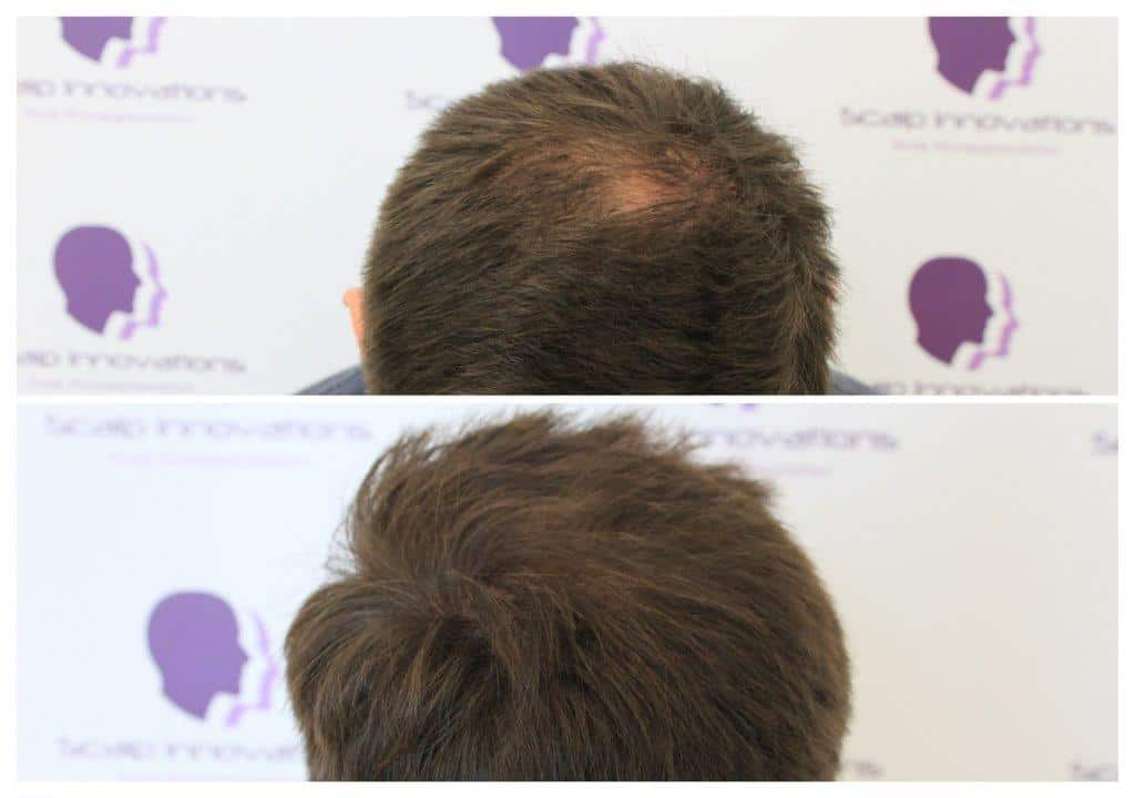 ASUS-Density-Tricopigmentation Gallery -The Scalp  & Micro-pigmentation Experts Swindon