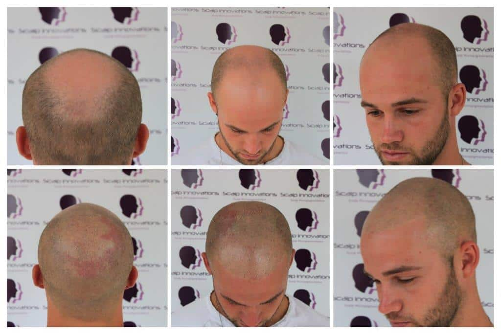 ASUS-Jack-day-1-session-one-Micropigmentation Gallery -The Scalp  & Micro-pigmentation Experts Swindon