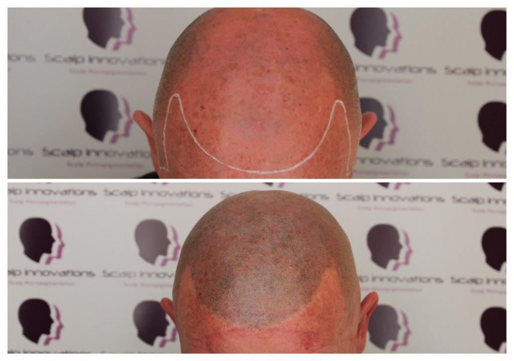 ASUS-New-look-micropigmentation Gallery -The Scalp  & Micro-pigmentation Experts Swindon