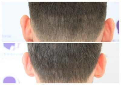 ASUS-Scar-Camouflage-400x281 Gallery -The Scalp  & Micro-pigmentation Experts Swindon