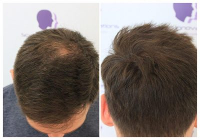 ASUS-Tricopigmentation-400x281 Gallery -The Scalp  & Micro-pigmentation Experts Swindon