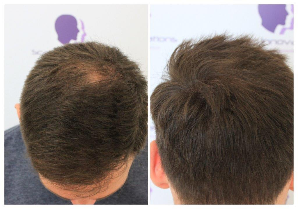 ASUS-Tricopigmentation Gallery -The Scalp  & Micro-pigmentation Experts Swindon