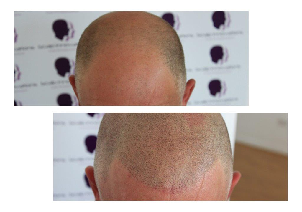 ASUS-eddie-3 Gallery -The Scalp  & Micro-pigmentation Experts Swindon