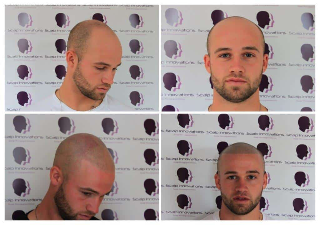 ASUS-jack-1 Gallery -The Scalp  & Micro-pigmentation Experts Swindon