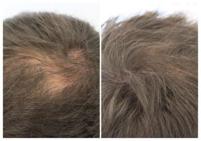 ASUS-james-2-400x281 Gallery -The Scalp  & Micro-pigmentation Experts Swindon