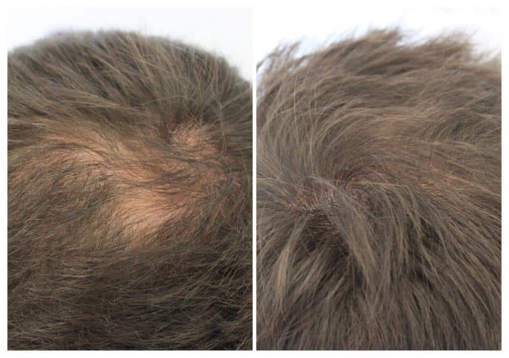 ASUS-james-2 Gallery -The Scalp  & Micro-pigmentation Experts Swindon