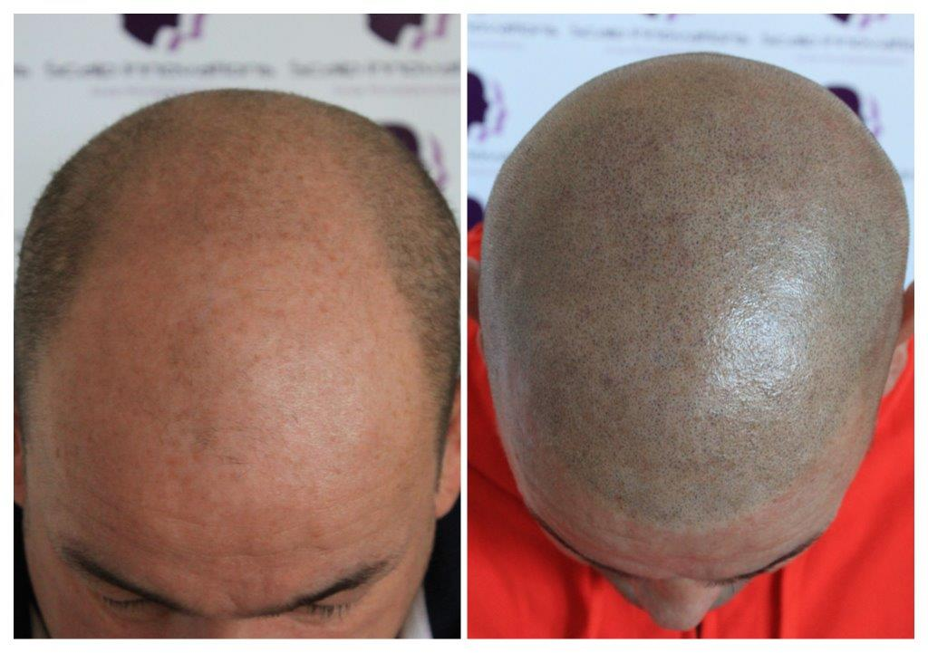 Ant-1 Aftercare -The Scalp  & Micro-pigmentation Experts Swindon