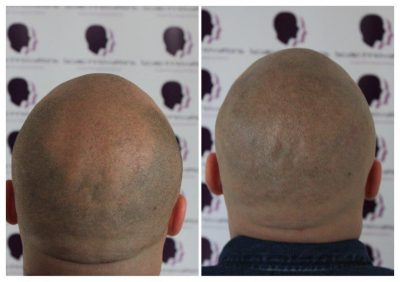 Dan-2-400x282 Gallery -The Scalp  & Micro-pigmentation Experts Swindon