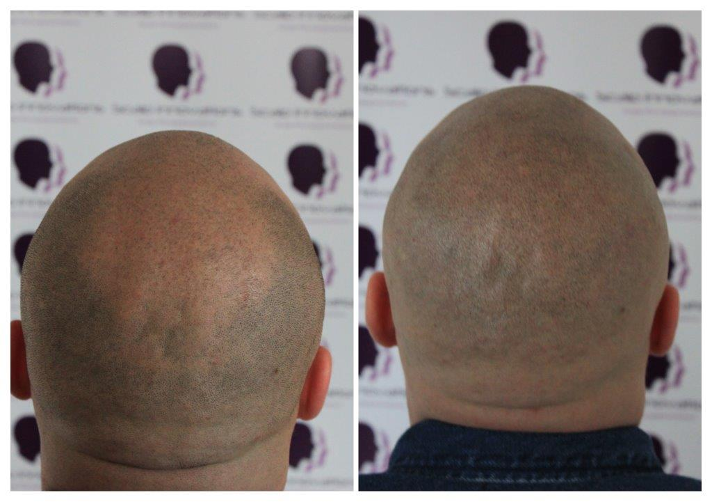 Dan-2 Gallery -The Scalp  & Micro-pigmentation Experts Swindon
