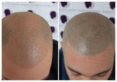 Dan-3-400x282 Gallery -The Scalp  & Micro-pigmentation Experts Swindon