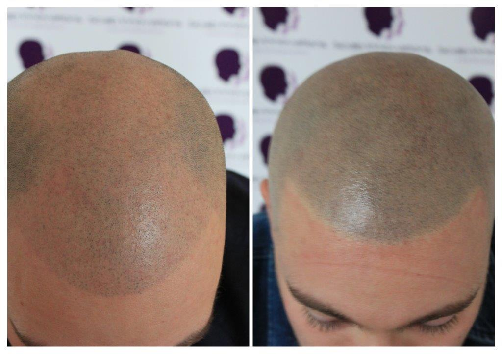 Dan-3 Gallery -The Scalp  & Micro-pigmentation Experts Swindon