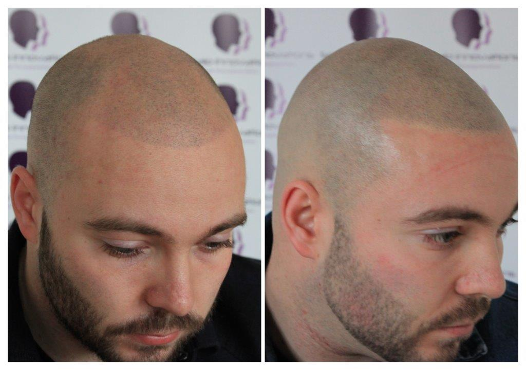 Dan-4 Gallery -The Scalp  & Micro-pigmentation Experts Swindon