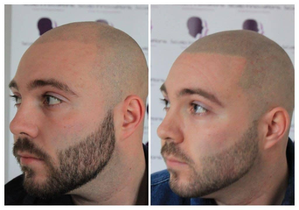 Dan-5-1024x721 Free Micropigmentation Consultation -The Scalp  & Micro-pigmentation Experts Swindon