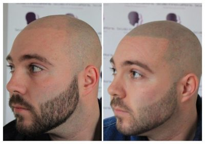 Dan-5-400x282 Gallery -The Scalp  & Micro-pigmentation Experts Swindon