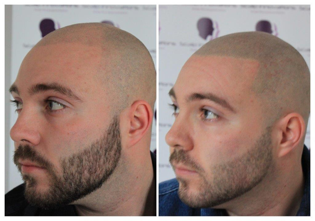 Dan-5 Gallery -The Scalp  & Micro-pigmentation Experts Swindon
