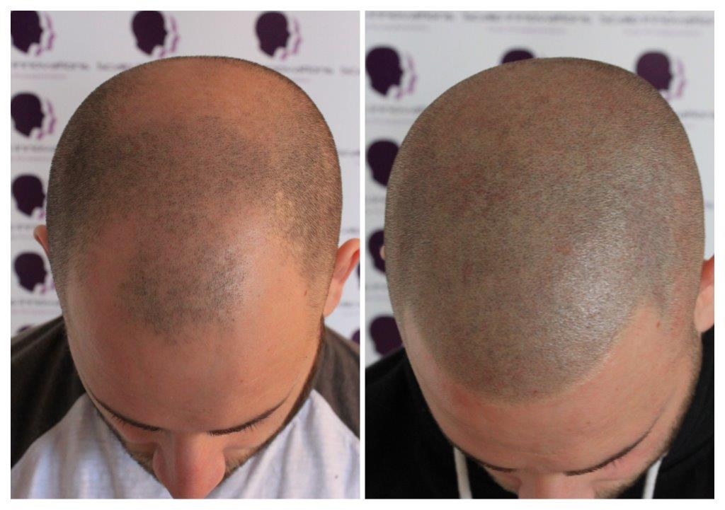 Dave-1 Gallery -The Scalp  & Micro-pigmentation Experts Swindon