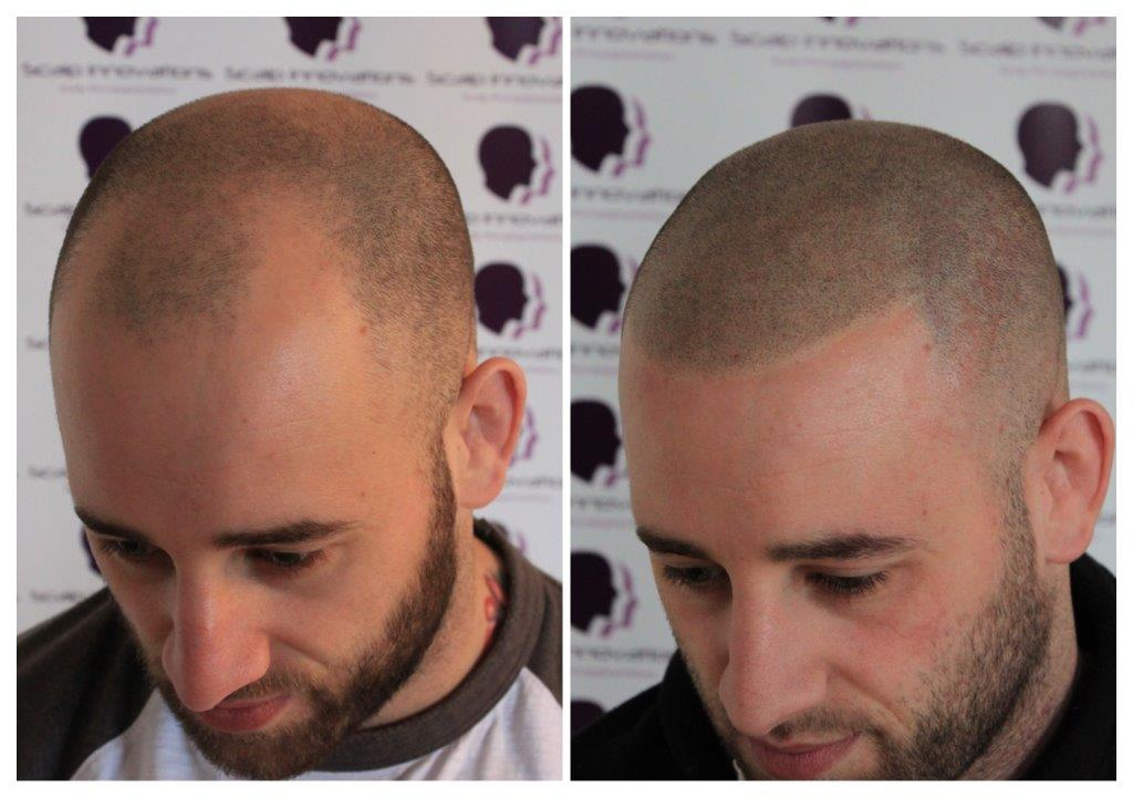 Dave-2 Gallery -The Scalp  & Micro-pigmentation Experts Swindon