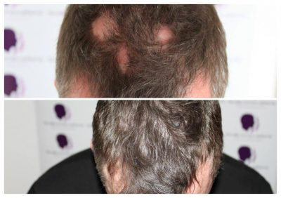 Density-4-400x282 Gallery -The Scalp  & Micro-pigmentation Experts Swindon