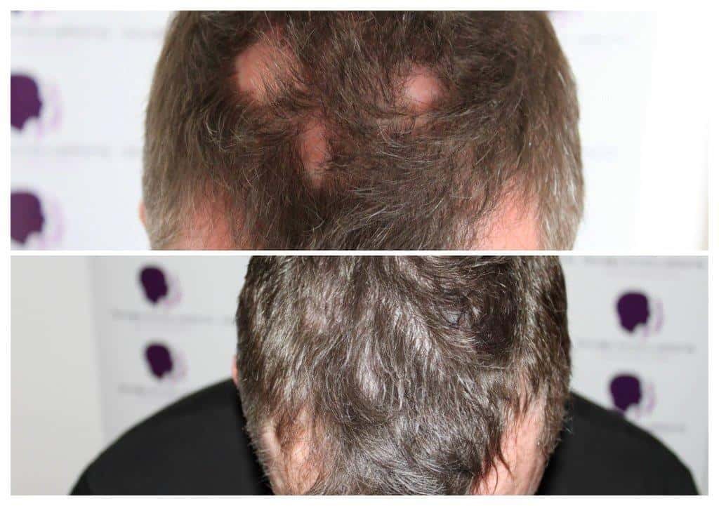 Density-4 Gallery -The Scalp  & Micro-pigmentation Experts Swindon
