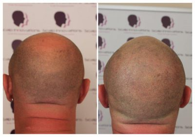 Dwaine-1-400x282 Gallery -The Scalp  & Micro-pigmentation Experts Swindon