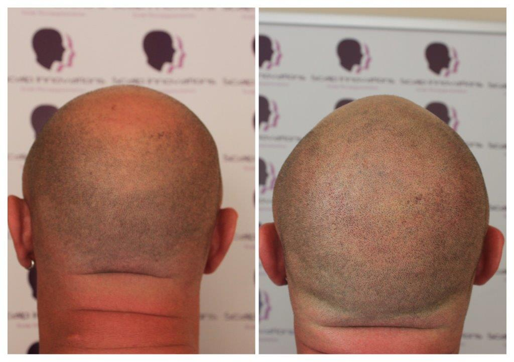 Dwaine-1 Gallery -The Scalp  & Micro-pigmentation Experts Swindon