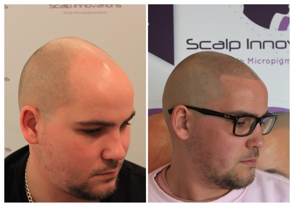 Eamonn-2 Gallery -The Scalp  & Micro-pigmentation Experts Swindon