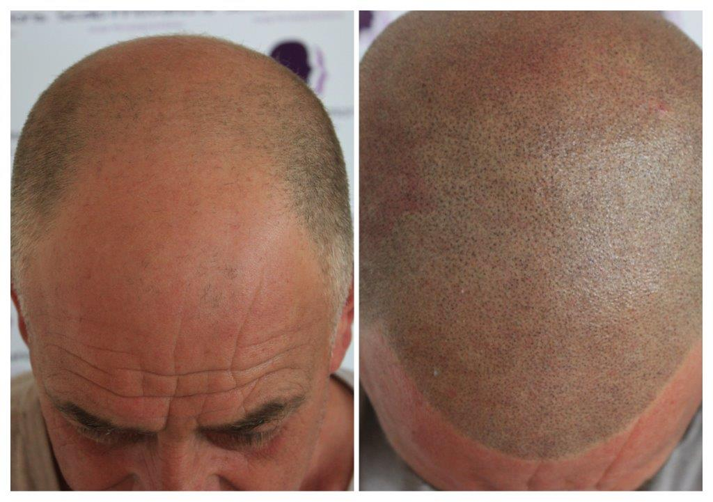 Eddie-4 Gallery -The Scalp  & Micro-pigmentation Experts Swindon