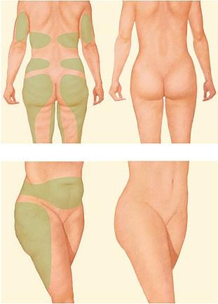 FAT-FREEZING-ICE-LIPO Cryolipolysis Fat Freezing (Ice Lipo) -The Scalp  & Micro-pigmentation Experts Swindon
