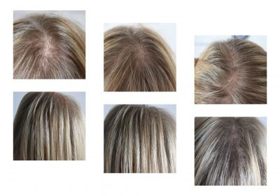 Female-Density-hair-thinning-400x281 Gallery -The Scalp  & Micro-pigmentation Experts Swindon