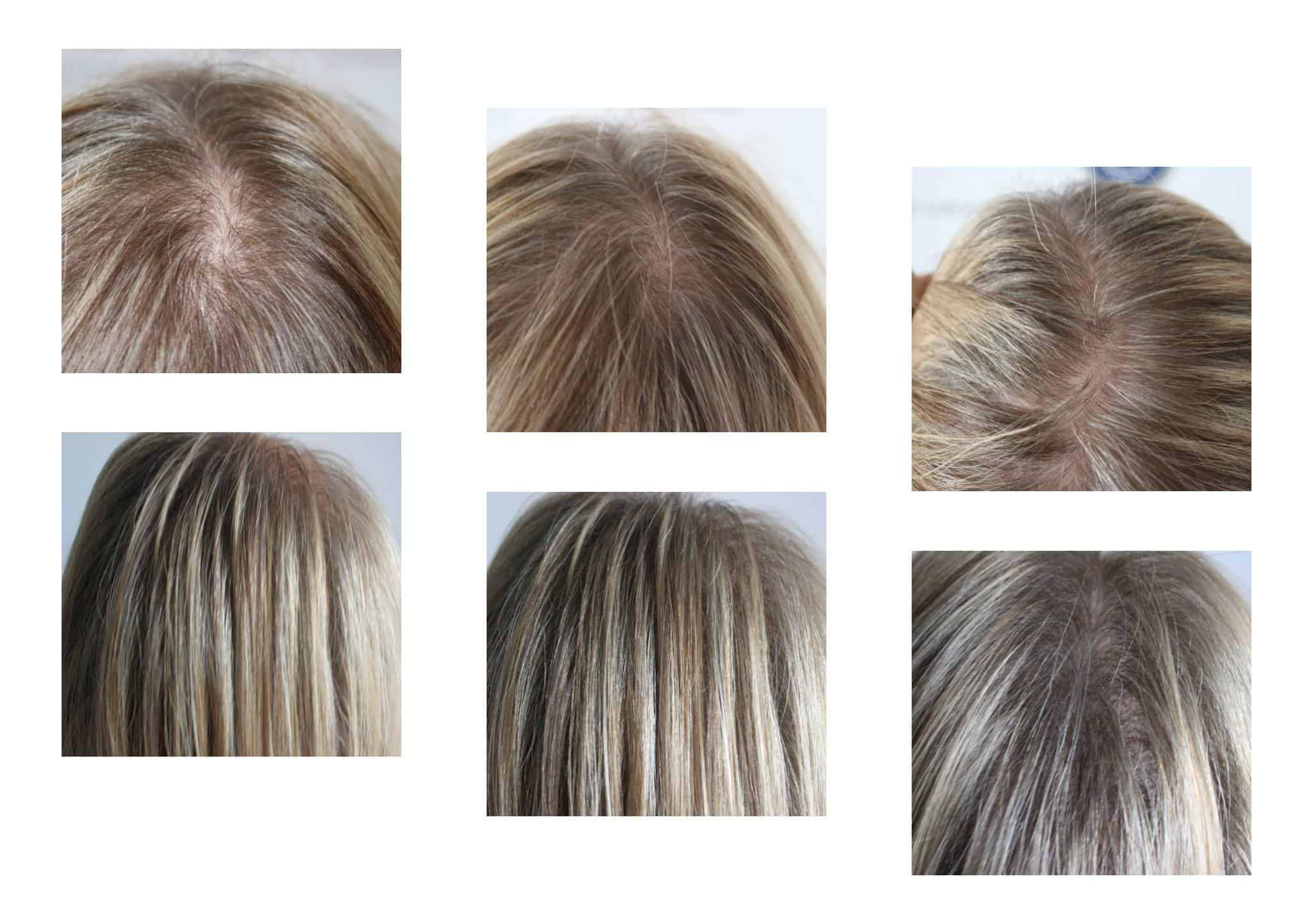 Female-Density-hair-thinning Gallery -The Scalp  & Micro-pigmentation Experts Swindon