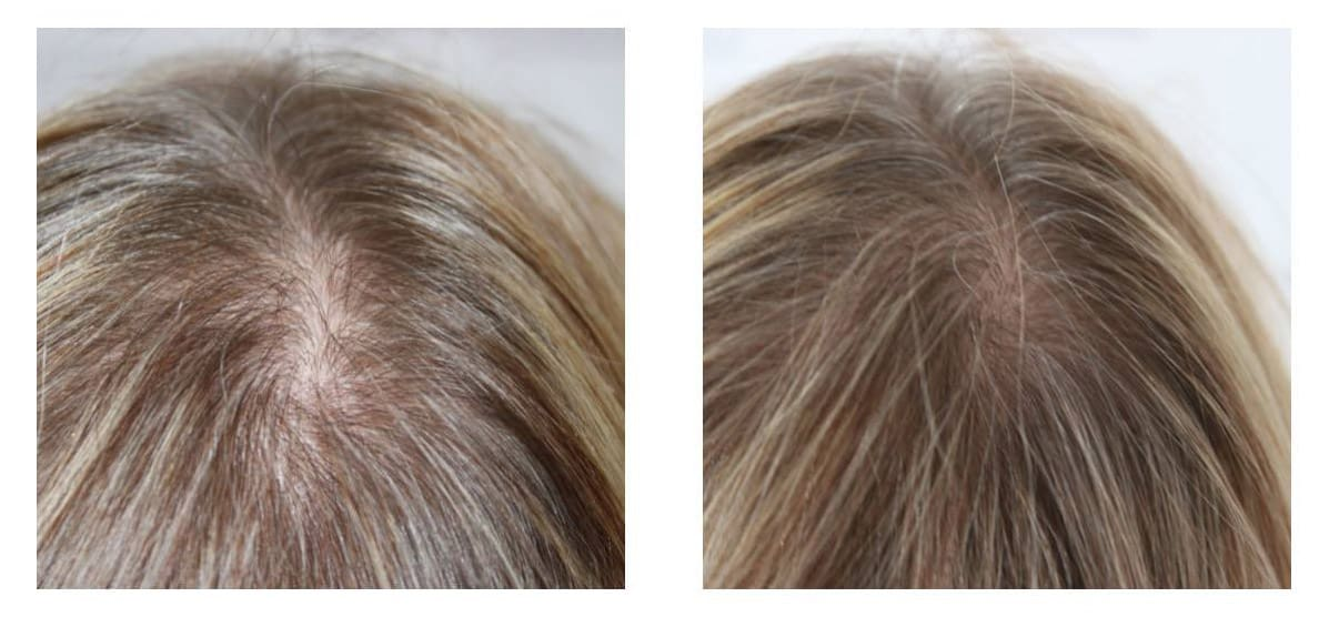 Female-hair-thinning Gallery -The Scalp  & Micro-pigmentation Experts Swindon