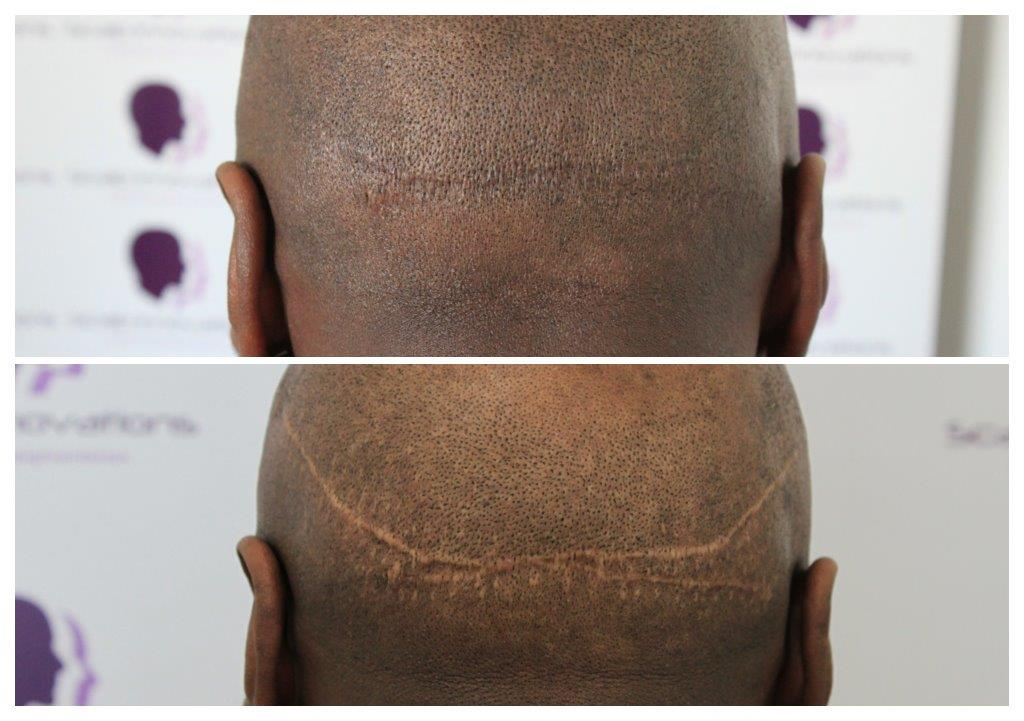 Fut-scar2 Treatments -The Scalp  & Micro-pigmentation Experts Swindon