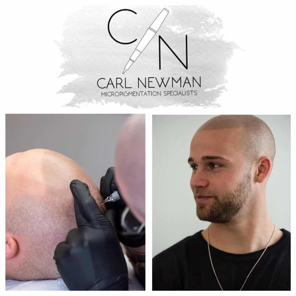 IMG-20190816-WA0006 Gallery -The Scalp  & Micro-pigmentation Experts Swindon