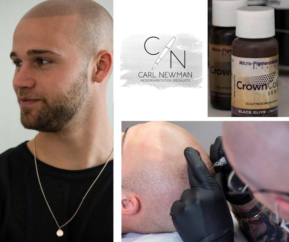 IMG-20190816-WA0013 Gallery -The Scalp  & Micro-pigmentation Experts Swindon