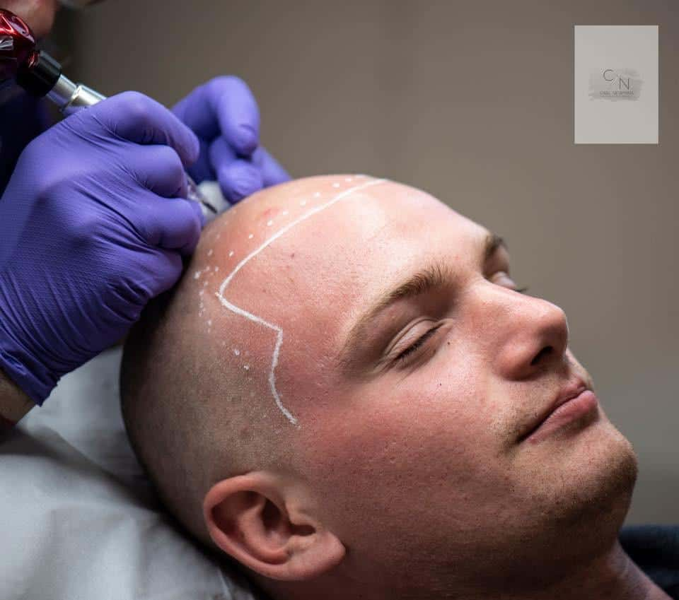 IMG-20190816-WA0019 Gallery -The Scalp  & Micro-pigmentation Experts Swindon