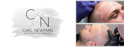 IMG-20190816-WA0022-400x152 Gallery -The Scalp  & Micro-pigmentation Experts Swindon