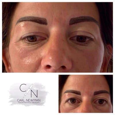 IMG-20190816-WA0023-400x400 Gallery for Semi-Permanent Make-up -The Scalp  & Micro-pigmentation Experts Swindon