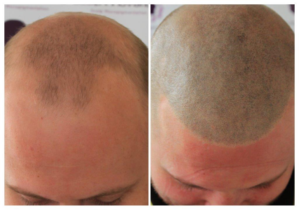 Jamie-smp-1 Gallery -The Scalp  & Micro-pigmentation Experts Swindon