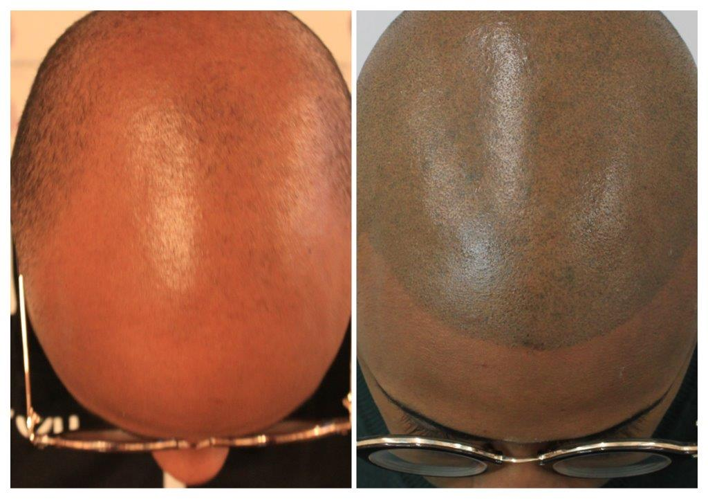 Lee-1 Home -The Scalp  & Micro-pigmentation Experts Swindon