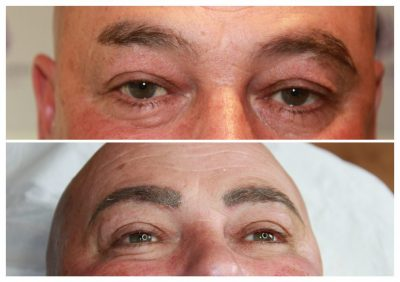 Male-Eyebrow-reconstruction-1024x721-400x282 Gallery for Semi-Permanent Make-up -The Scalp  & Micro-pigmentation Experts Swindon