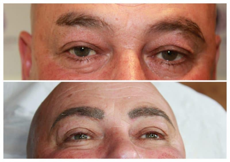 Male-Eyebrow-reconstruction-1024x721-e1533732417407 Gallery for Semi-Permanent Make-up -The Scalp  & Micro-pigmentation Experts Swindon