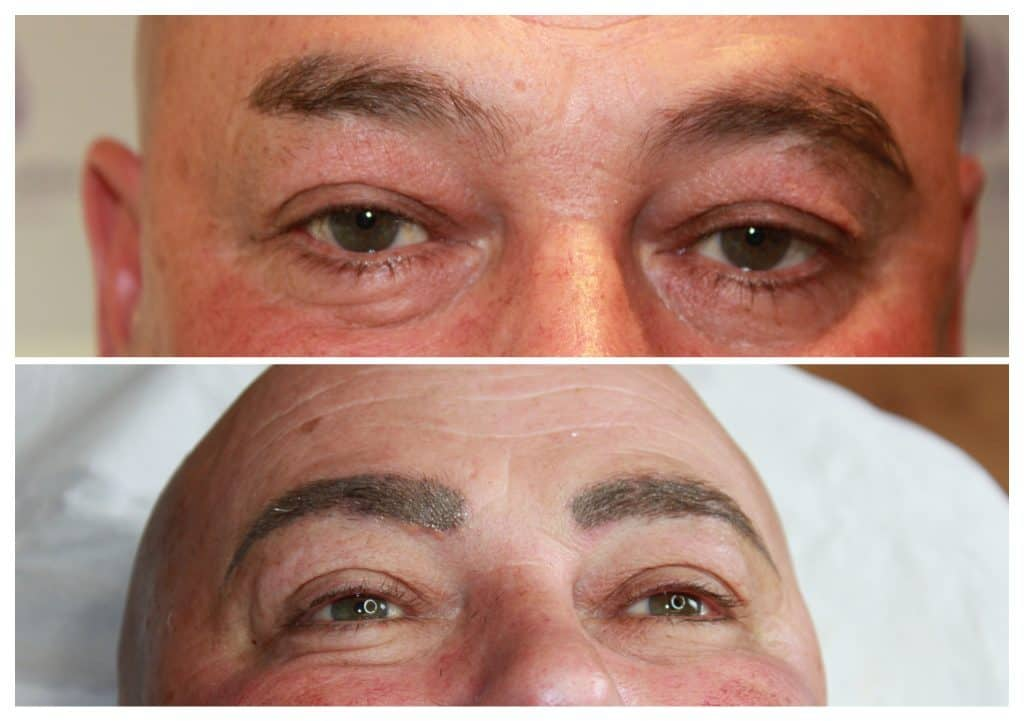 Male-Eyebrow-reconstruction-1024x721 Semi-Permanent Make-up -The Scalp  & Micro-pigmentation Experts Swindon